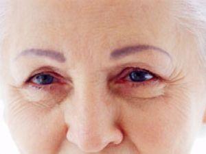 Ojos: Problemas más frecuentes