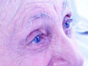 Visión deficiente: qué hacer