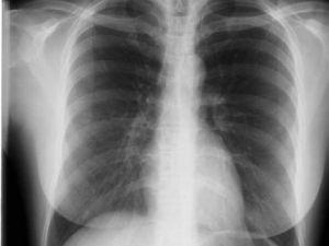 ¿Por qué se produce el asma bronquial?