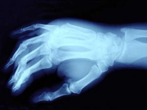 Causas más frecuentes de dolor en la mano