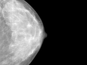 Realización de una ecografía mamaria