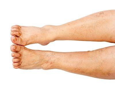 ¿Puedes tener neuropatía periférica en un solo pie?