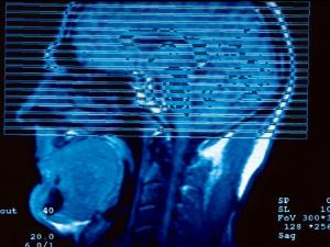 ¿Qué sucede en el cerebro cuando se sufre Alzheimer?
