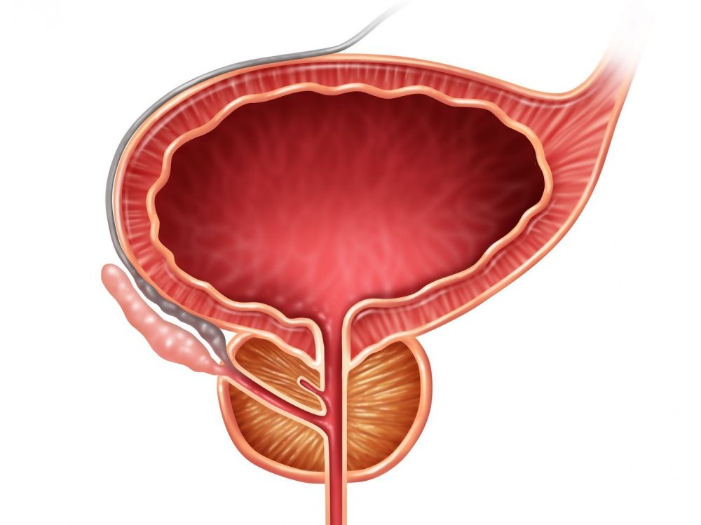 acceso de próstata y vejiga