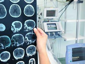 ¿Qué riesgo tengo yo de padecer Alzheimer? ¿Es hereditario?