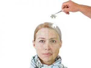 Fases de la enfermedad de Alzheimer