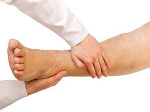 ¿Te duelen las piernas al caminar? La 'claudicación intermitente'
