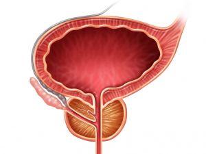 Hiperplasia o adenoma de próstata: causas, síntomas y tratamientos