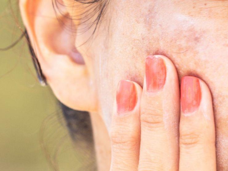 Cómo evitar las manchas en la piel tras el verano