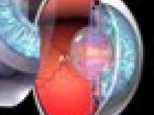 Así se produce un glaucoma