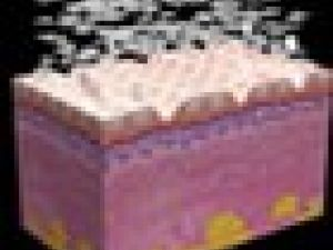 Rejuvenecimiento de la piel por medio del láser