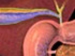 Así se extirpa la vesícula biliar