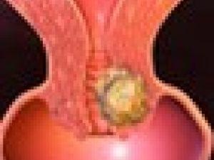 El origen del cáncer de útero