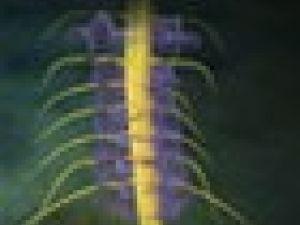 Por qué se produce el dolor de cuello