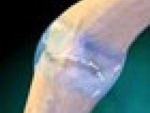 Reumatismo crónico de la mano