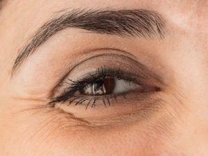 El truco de la abuela para las ojeras y bolsas de los ojos