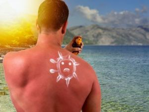 4 trucos para aliviar las quemaduras del sol