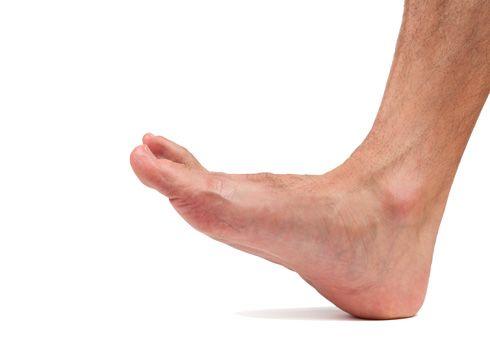 Dorsiflexión del pie