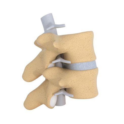 Vértebras dorsales (detalle)