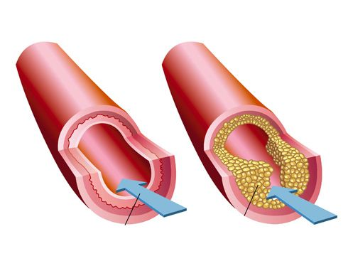 Arteria anormal