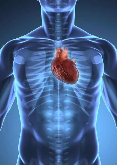 Corazón (situación)