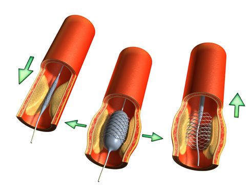 Prótesis aorta