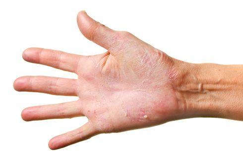 Eczema al frío