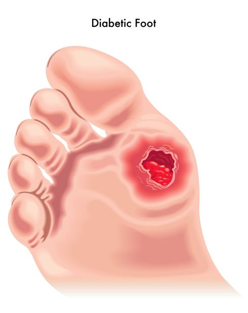 Management of Diabetic Foot Ulcers – PubMed Central (PMC)