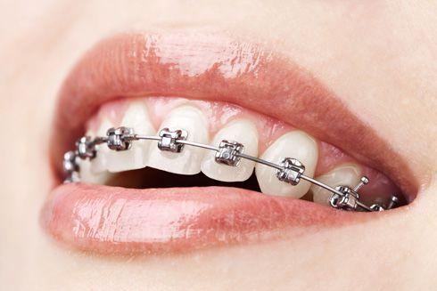 Aparato dental fijo