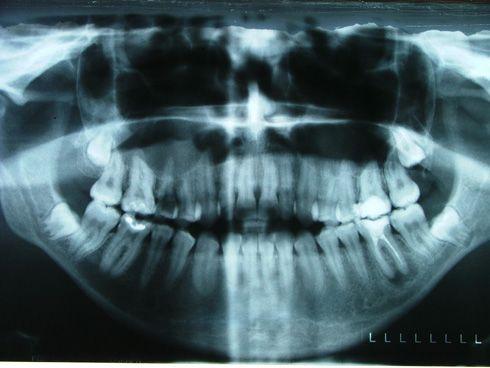 Panorámica de la boca