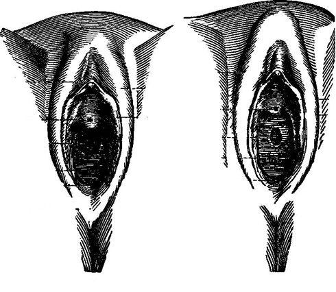 Clítoris y vulva