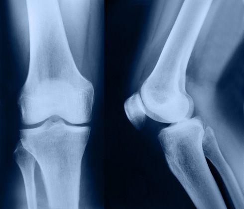 Radiografía de rodilla
