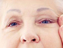 ¿Qué hacer en caso de sufrir un glaucoma?