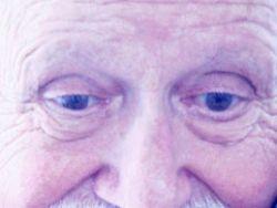 Tratamientos del glaucoma