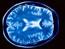 ¿Cómo afectan los estímulos al cerebro?