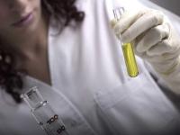 ¿Cómo se recoge la orina para un análisis?