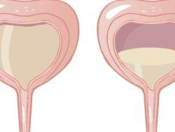 Aparición de los síntomas de la incontinencia