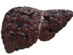 Tumores en el hígado o tumores hepáticos