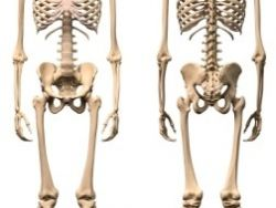 Tumores óseos malignos (cáncer de huesos)