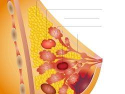 Estudio y tratamiento del cáncer de mama