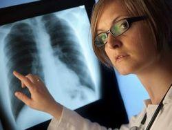 Síntomas y tratamiento dela embolia pulmonar