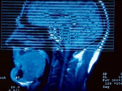 Enfermedad de Alzheimer: ¿qué es y cómo se produce?