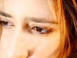 La parálisis facial, síntoma de un ictus