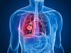 Neumonía, diagnóstico de las infecciones respiratorias