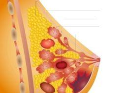 ¿En qué consiste la mamografía?