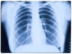 Pruebas de función respiratoria