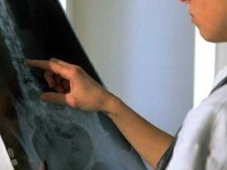 Radiología simple (Estudios con Rayos X)