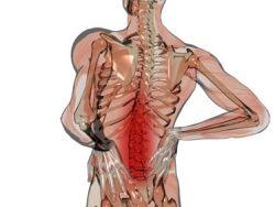 Preguntas frecuentes sobre el dolor lumbar