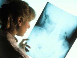 ¿Qué es la estenosis lumbar?