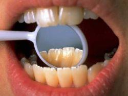 Así cambian los dientes y encías con los años